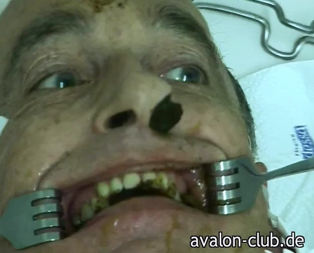 The Dentist - Teil 2 (mit Lady Kate - avalon-club.de) Screen 9