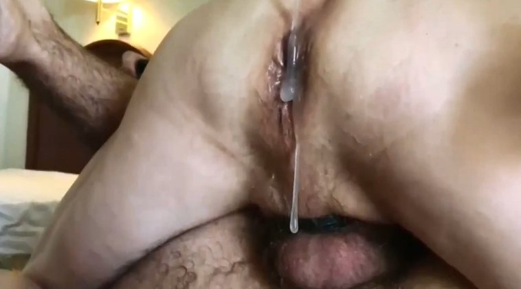 Really shocking sized amateur anal prolapse ever seen in HD 1280p