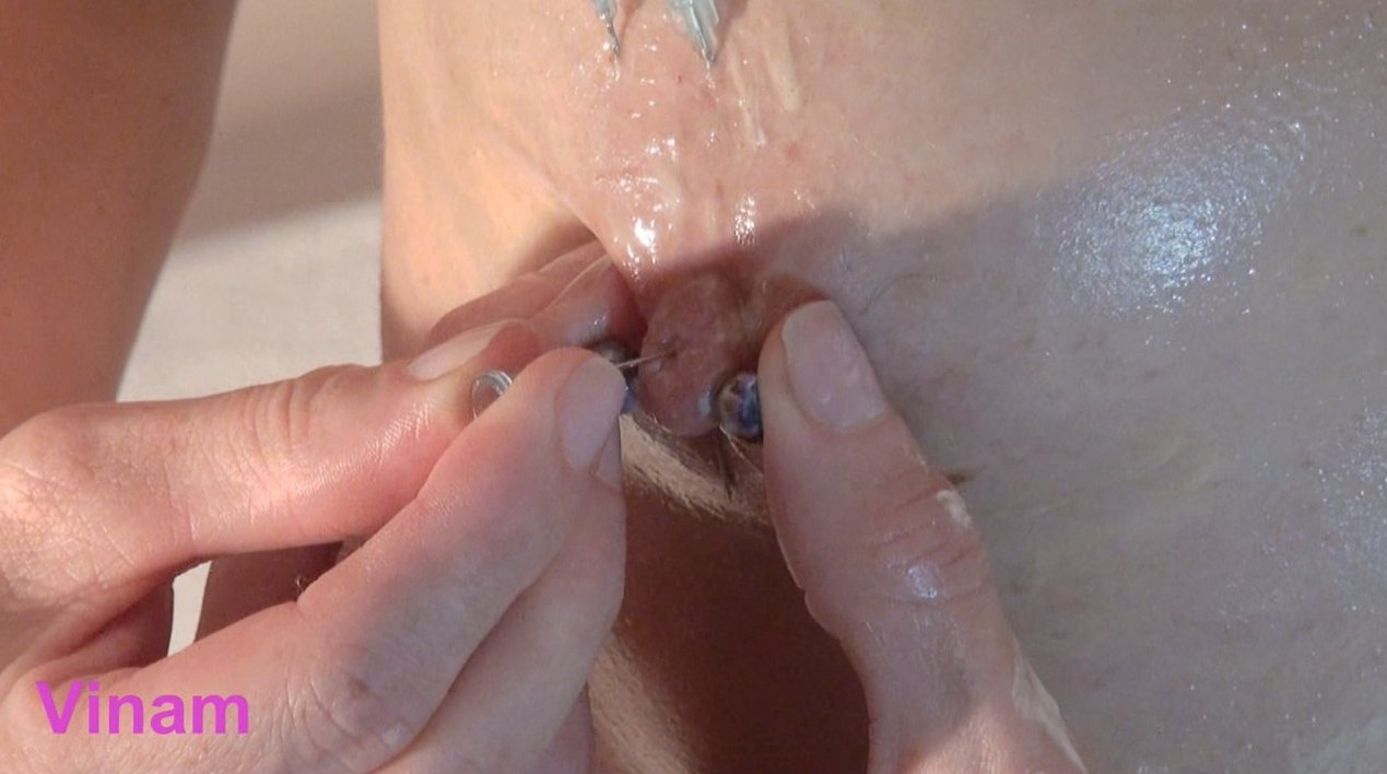 Extreme Site RIp from Vinam - Cervix fuck, outdoor extreme, pussy and anal tortures inside (24 vids) Brushes Fucking, Medical FEtish, Huge Objects Fisting and more Extreme