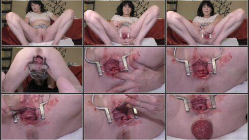 Period, Peehole & Prolapse - Dirtygardengirl .ScrinList